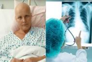 Care sunt semnele prin care cancerul se face simtit in organism. Durerea apare cand e prea tarziu