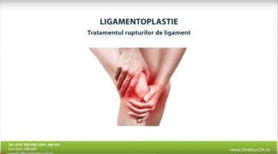 Ligamentoplastie - tratamentul rupturilor de ligament la Ovidius Clinical Hospital