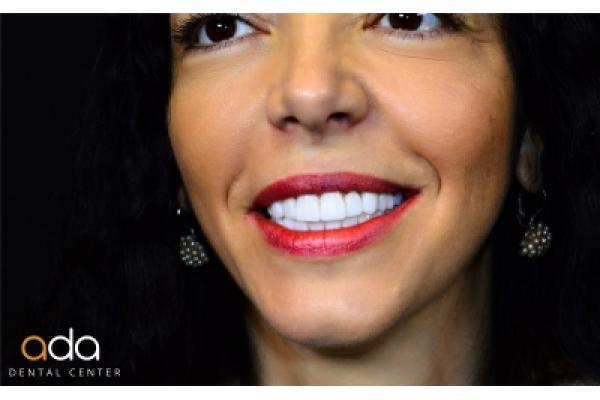 Ada Dental Center - Final_smile.jpg