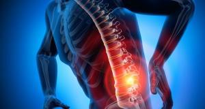 Aspecte importante despre operatia de hernie de disc