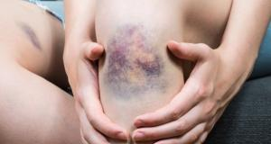 Care este diferenta dintre vanataie si cheag de sange?